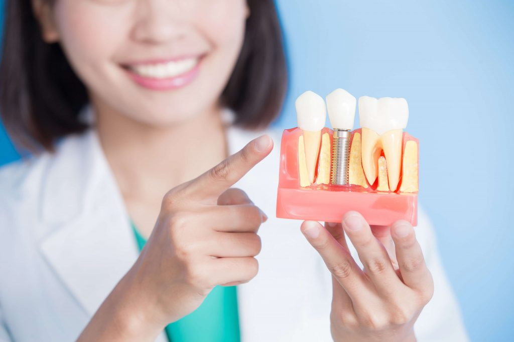 dental_implant