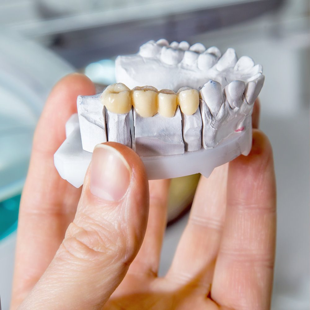 Technical shots of model on a dental prothetic laboratory.Dentist hand with plaster model