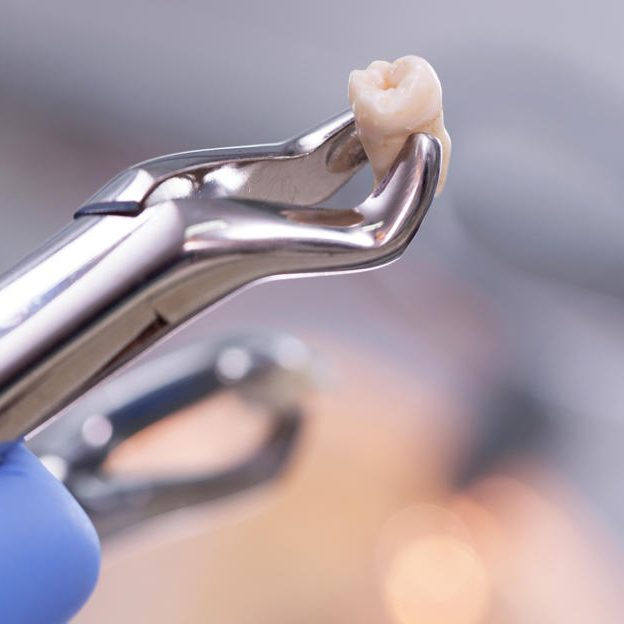 extraction_tooth